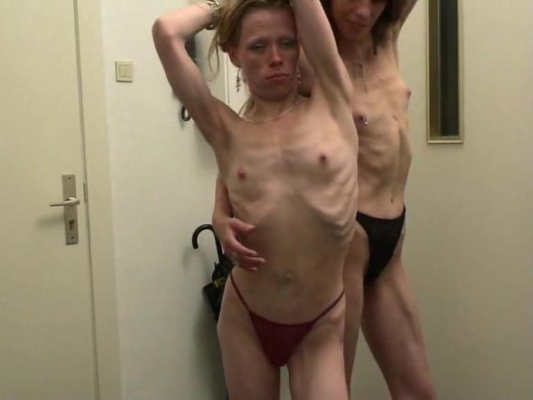 Две анорексички позирует топлесс