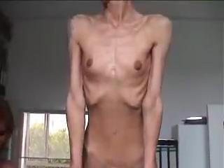Соло голых анорексичек