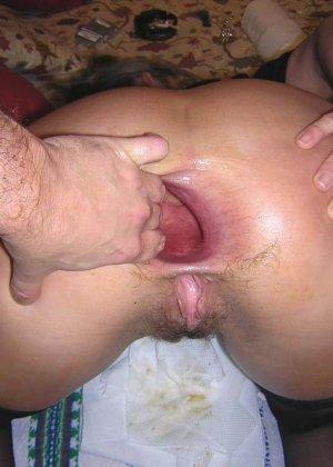 последсвия анального секса фото
