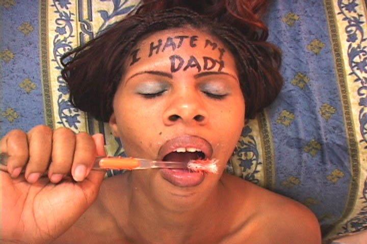 можно ли отбелить зубы гидроперитом