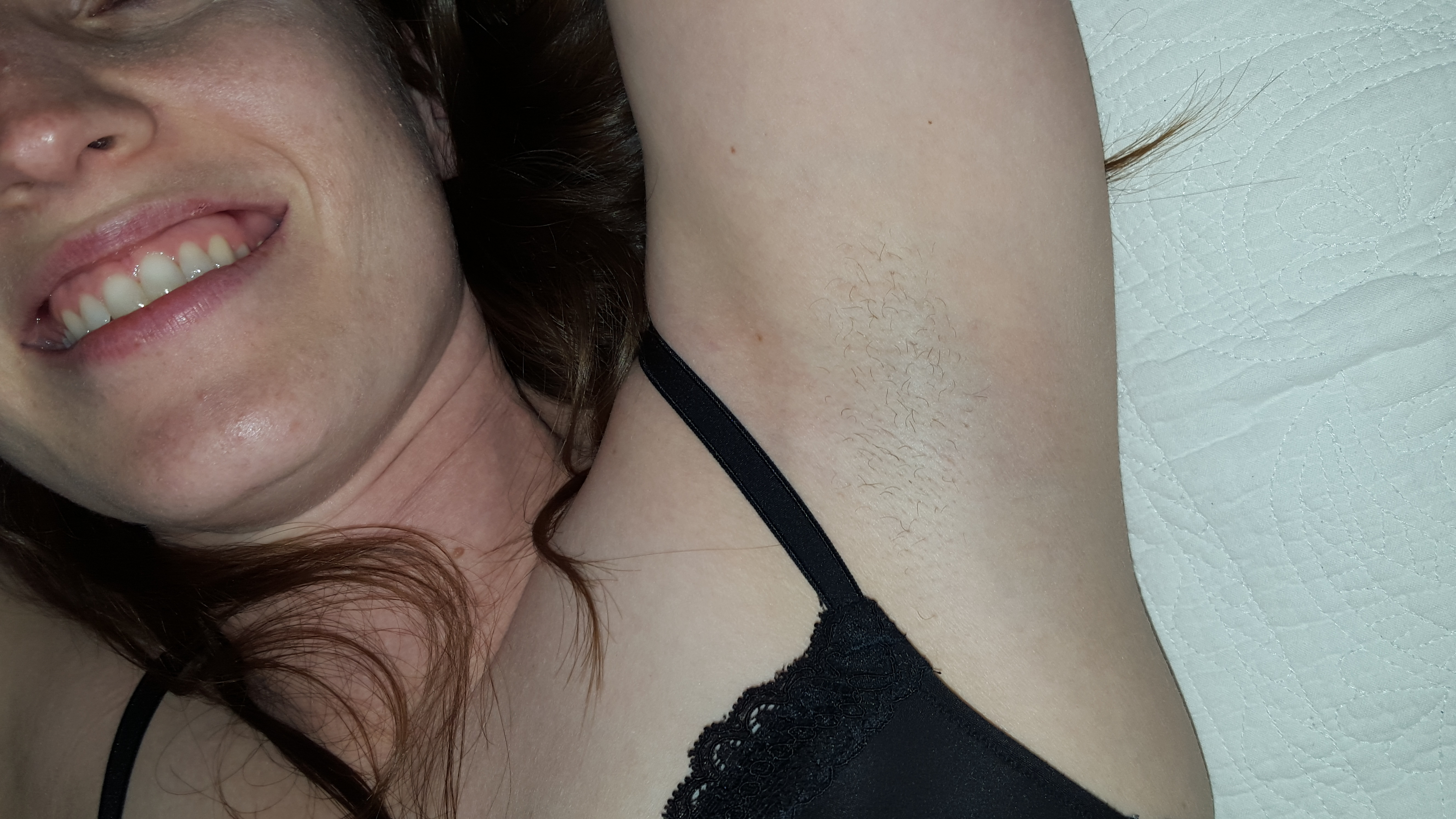 Rashes in armpits pictures Amanda Brooks Is Taking Her Leave - The New York Times
