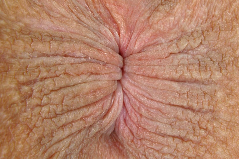 Фото болезней анального отверстия, Заболевания заднего прохода: симптомы и диагностика 5 фотография