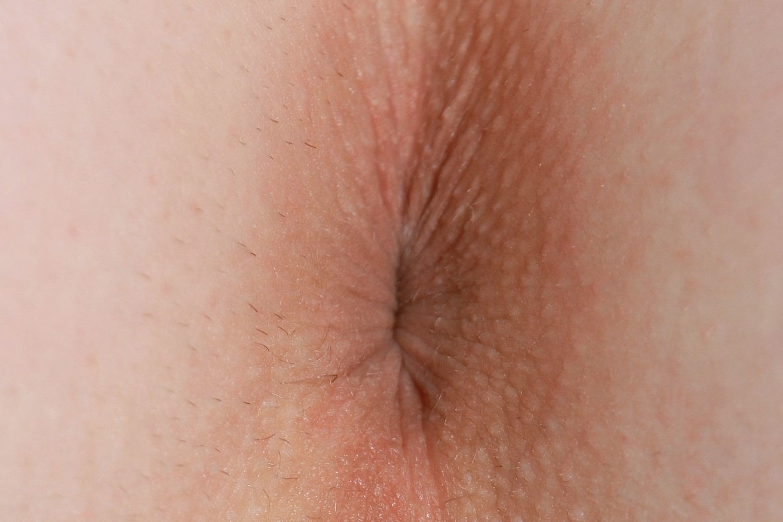normalniy-anus